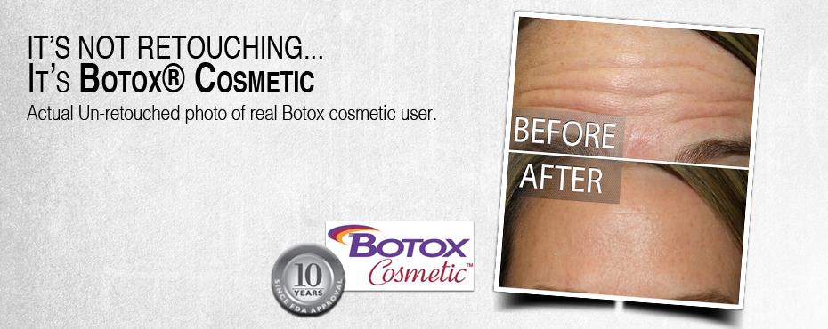 Home-slidedeck_Botox7