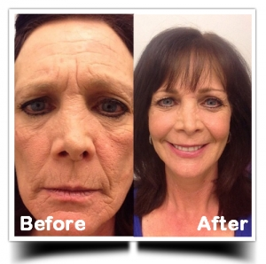 Vaser-Lipo-before-after-face