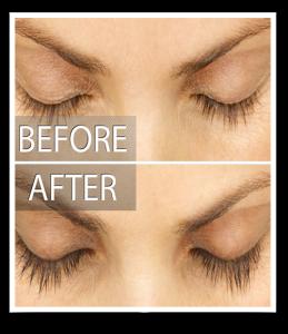 eyelash_before_after_Latisse