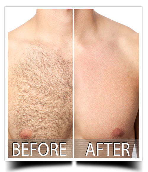 Skin Doctor for Laser treatment | hair removal ...